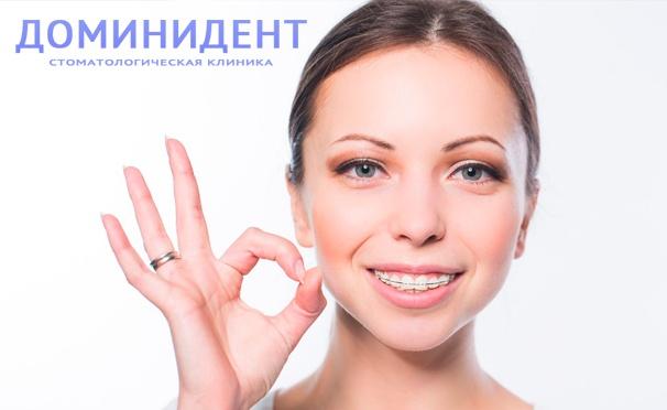 Скидка на Установка брекет-систем, а также ортодонтической съемной пластины для ребёнка в многопрофильной стоматологической клинике «ДоминиДент». Скидка до 80%